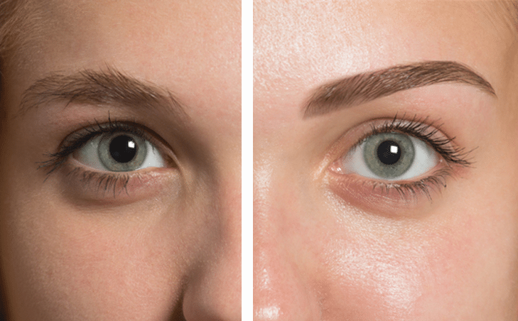 Before & After - What is Microblading - JB brow Design