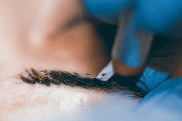 The Healing Process Following a Microblading Procedure