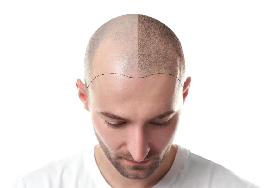 Micropigmentation: The Hair Loss Solution You've Been Searching For